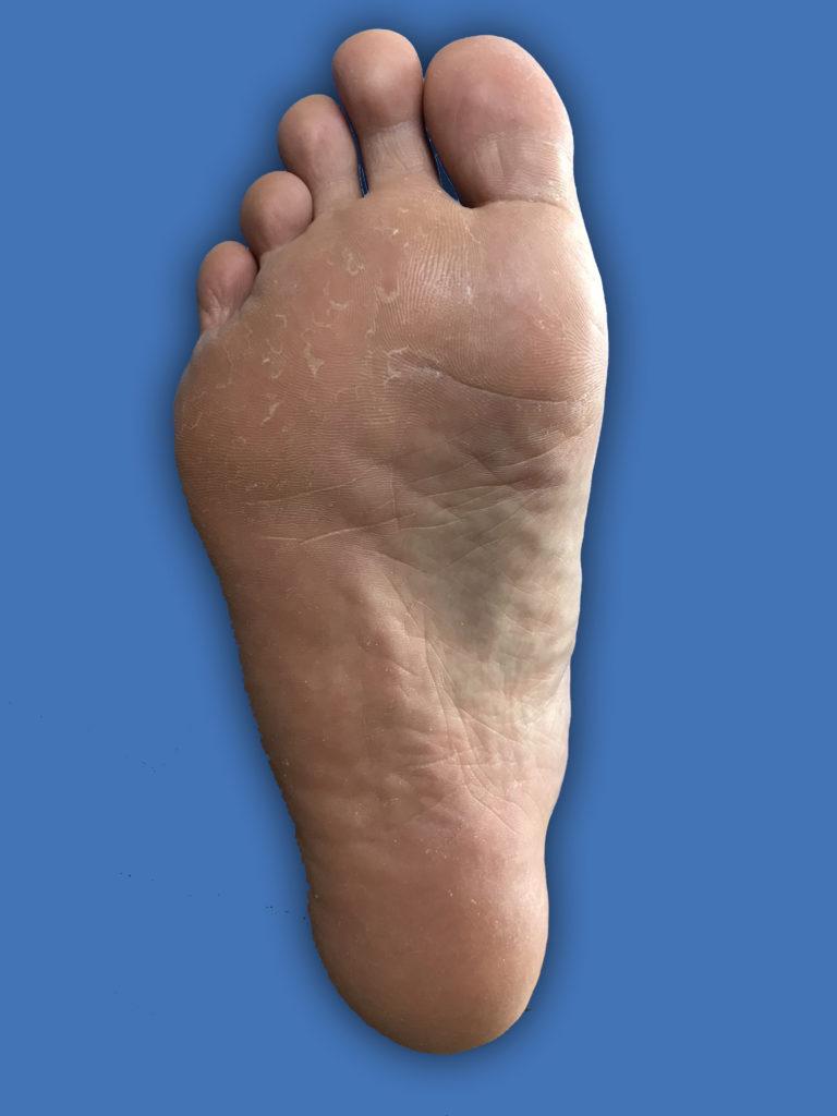 足裏の水虫治療画像4週目