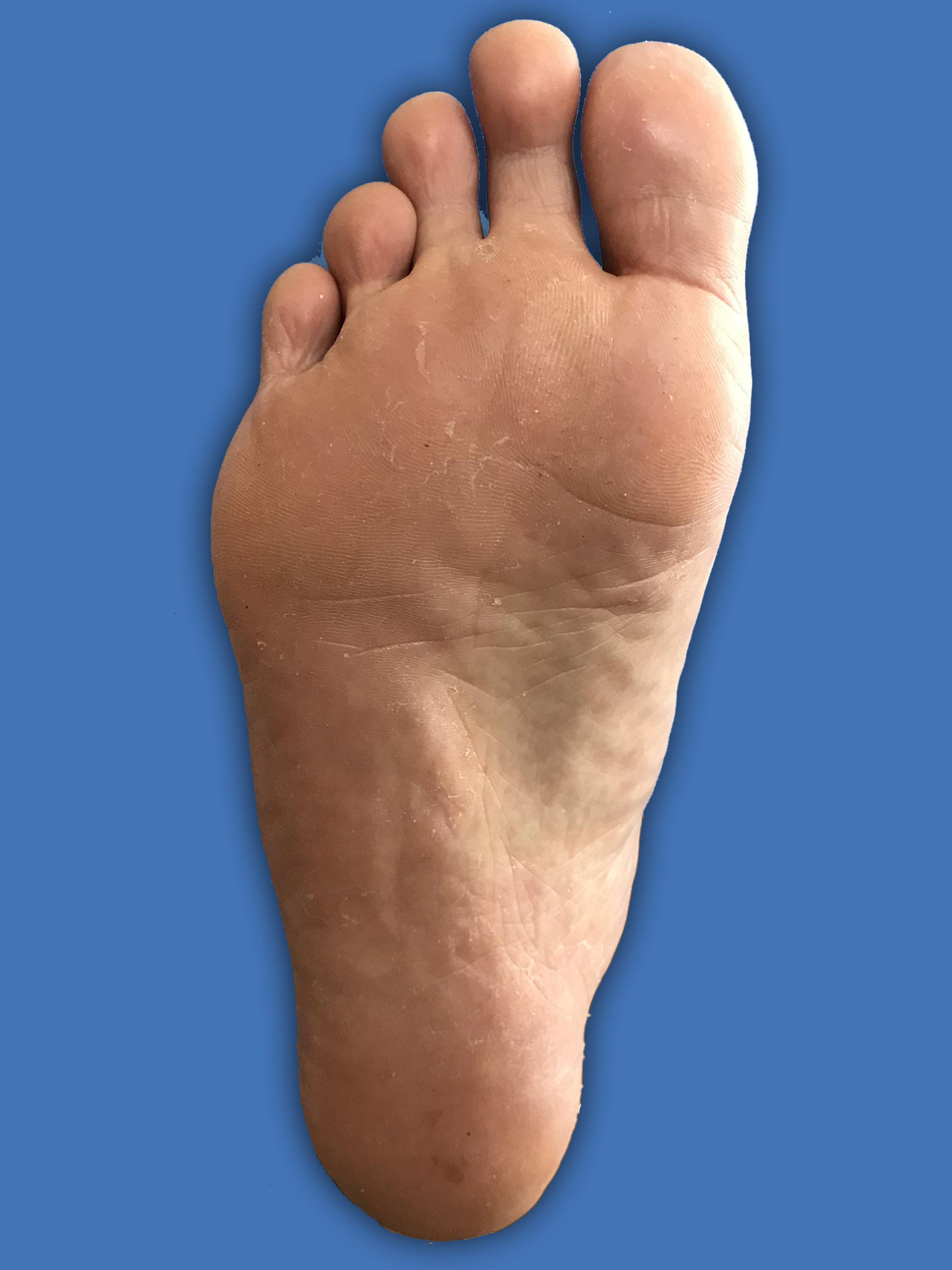 水虫治療1週目足の上画像